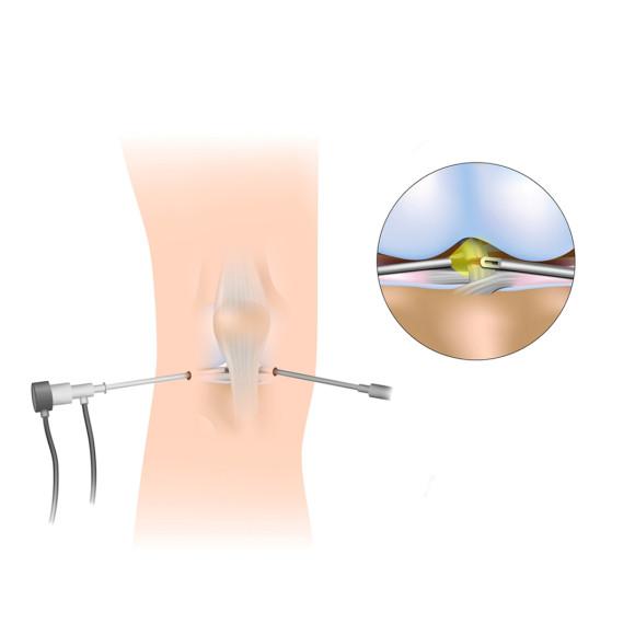 Αρθροσκοπική Χειρουργική